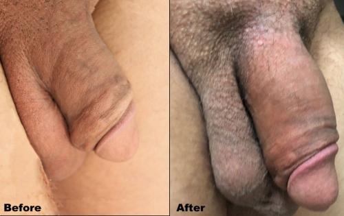 Mens Medical - Penis Enlargement #3