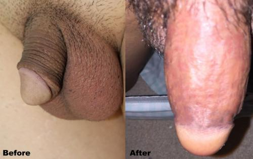 Mens Medical  - Penis Enlargement #4